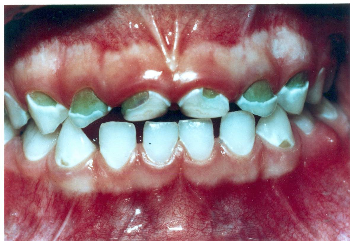Early Tooth Cavity