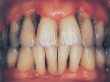 how to clean stained teeth from smoking
